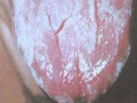 急性假膜型念珠菌口炎