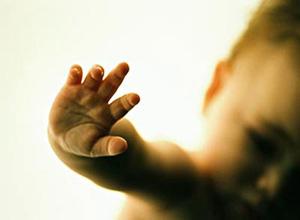 小兒砷中毒