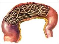 腸道寄生蟲病