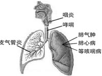 化學性支氣管炎