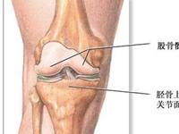 膝關節退行性病變