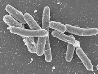 腸道厭氧菌感染